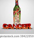 암, 막다, 방어 39422050