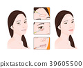 Vector - A plastic surgery for face and beauty, before and after illustration. 009 39605500