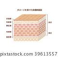 受損的人體皮膚(粗糙的皮膚)插圖(字符)的截面圖 39613557
