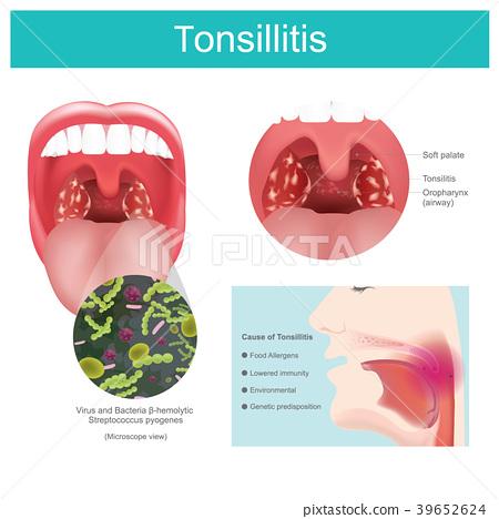 Tonsillitis 39652624