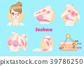 woman with sunburn problem 39786250