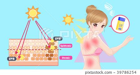 woman with sunburn problem 39786254
