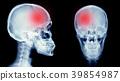 hemorrhage stroke 39854987