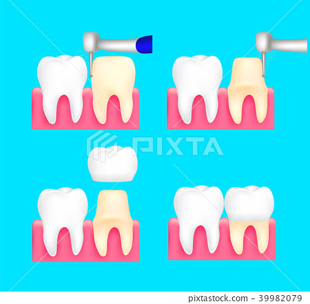 Dental crown installation process.  39982079