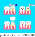 Dental crown installation process.  39982080
