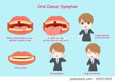 businessman with oral cancer 40053895
