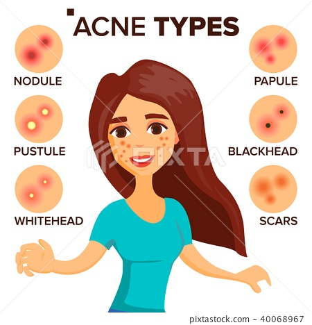 Acne Types Vector. Girl With Acne. Skin Care. Treatment, Healthy. Nodule, Whitehead. Isolated Flat 40068967