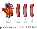 Myocardial infarction. 3d Realostic Stent in Heart 40119349