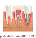 Realistic Healthy Teeth Structure Dental Implant  40132193