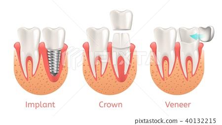 Teeth Procedure Implant Veneer Crown Restoration 40132215