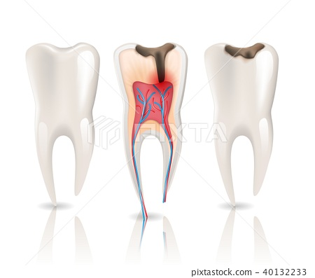 Caries and Health Tooth 3d Realistic Pulpitis. 40132233
