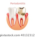 Periodontitis, Inflammation of Gums 3d Realistic 40132312