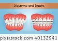 Diastema and Braces with Crossbite Teeth 3d Vector 40132941