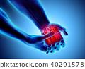 고통, 아픔, 통증 40291578
