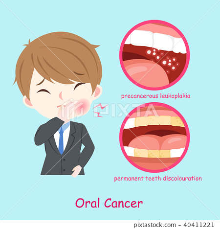 businessman with oral cancer 40411221
