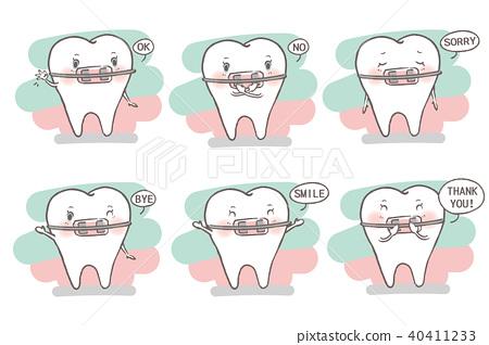 tooth wear brace 40411233