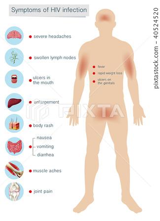Human Anatomy Symptoms of HIV Infection 40524520