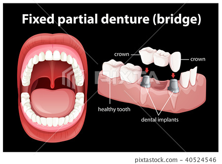 Medical Vector of Fixed Partial Denture 40524546