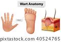 Human Anatomy Wart on Hand and Foot 40524765