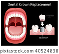 Human Mouth Dental Crown Replacement 40524838