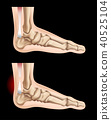 Human feet and injury in tendon 40525104
