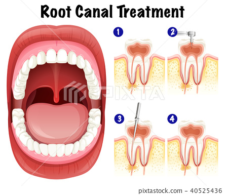 Dental Vector of Root Canal Treatment 40525436