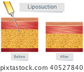 Liposuction Medical Treatment and Comparison 40527840