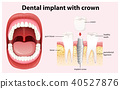 Dental Implant with Crown Vector 40527876