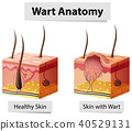 Wart Human Skin Anatomy Illustration 40529131