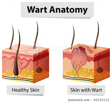 Wart Human Skin Anatomy Illustration 40529131