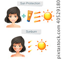 Vector Showing Women Skin After Sun 40529180