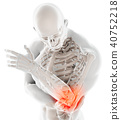 3d illustration of human elbow injury. 40752218