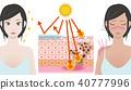 กลไกของการถูกแดดเผาโดยมีและไม่มีครีมกันแดด 40777996