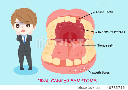 man with oral cancer symptoms 40783716