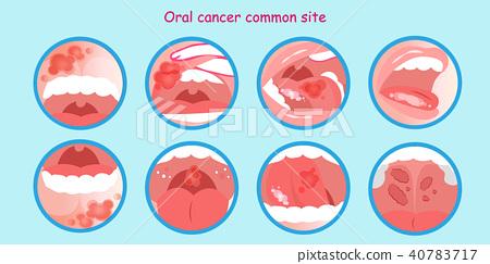 oral cancer commom site 40783717