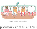 canal, root, tooth 40783743