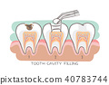 tooth cavity filling 40783744