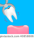 Decay tooth removal.  40858606