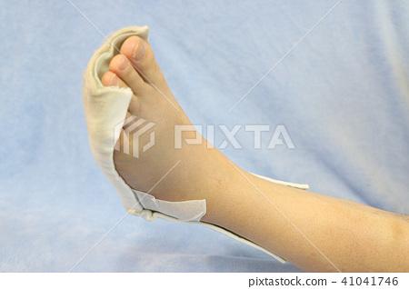 발 뒤꿈치 복잡 골절 찜질 반 깁스 41041746
