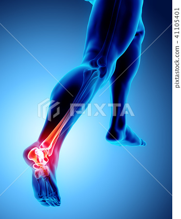 Ankle painful - skeleton x-ray. 41105401