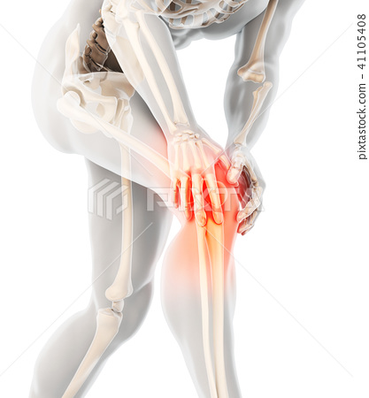 Knee painful - skeleton x-ray. 41105408