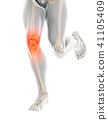 knee,pain,painful 41105409