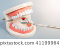Tooth dental caries on denture with equipment. 41199964