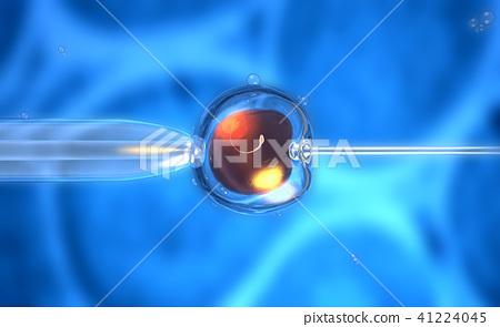 artificial insemination or in-vitro fertilization  41224045