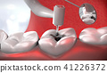 dentist's drill treating a sick tooth 41226372