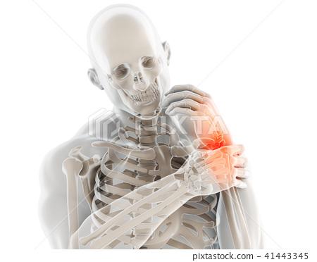Wrist painful - skeleton x-ray. 41443345