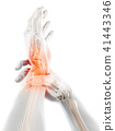 Wrist painful - skeleton x-ray. 41443346