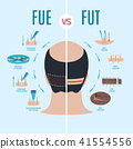 FUE and FUT hair loss treatment 41554556