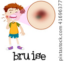 Magnified boy with bruise 41696377