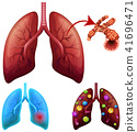 A Set of Lung Condition 41696471